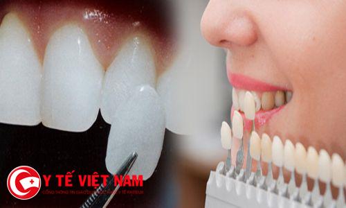 Dán răng sứ thẩm mỹ - cách phục hồi răng hư tổn nhanh nhất