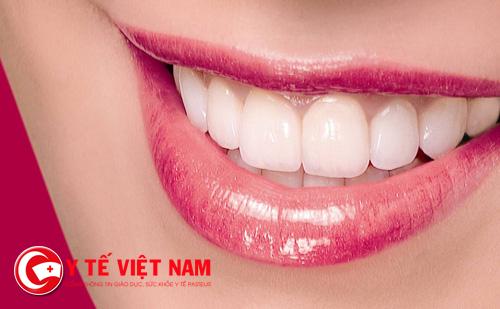 Trám răng thẩm mỹ là cách rẻ nhất và hiệu quả để bạn có được một hàm răng đẹp