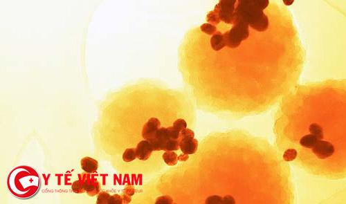 dieu-tri-ung-thi-bang-nam-cham