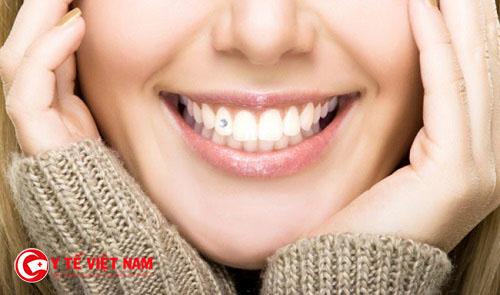 Gắn kim cương vào răng cần phải lưu ý những điều quan trọng