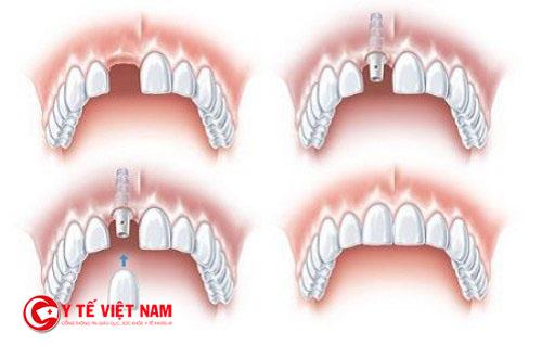 Kỹ thuật cấy ghép Implant mang lại tính thẩm mỹ cao cho hàm răng của bạn