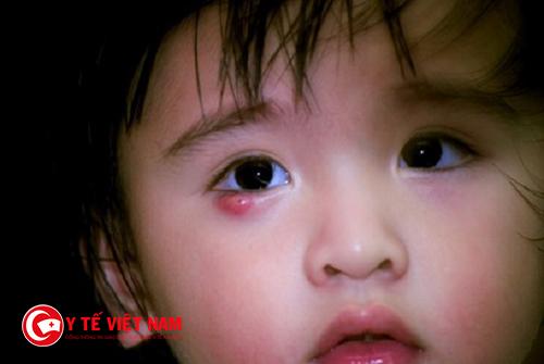 Lẹo mắt ở trẻ vốn là một khối phù nề đỏ, có nhân