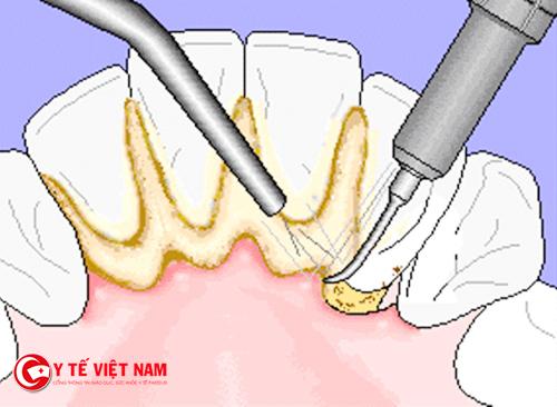 Lấy cao răng thường xuyên gây ảnh hưởng nhiều đến răng miệng