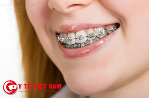 Niềng răng là phương pháp thẩm mỹ răng hô phổ biến nhất