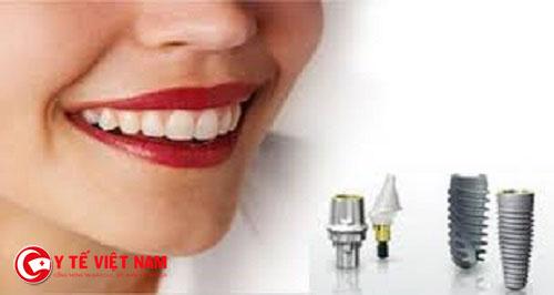 Để cấy ghép răng Implant một cách hiệu quả cần phải thực hiện đúng quy trình