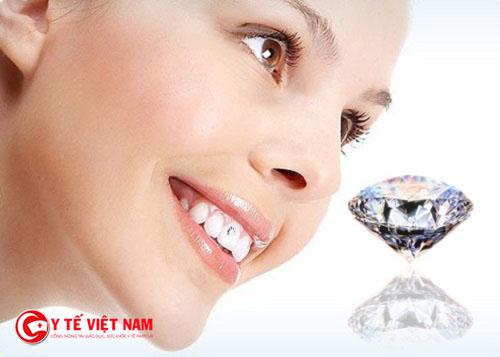 Công nghệ răng đính kim cương E.Las mang lại cho bạn nụ cười tươi sáng