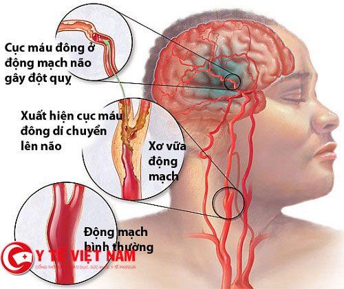 Đột quỵ có hai nguyên nhân chính là xuất huyết não và đột quỵ não.
