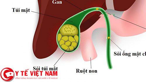 Sỏi ống mật chủ là nguyên nhân chính gây viêm tụy cấp