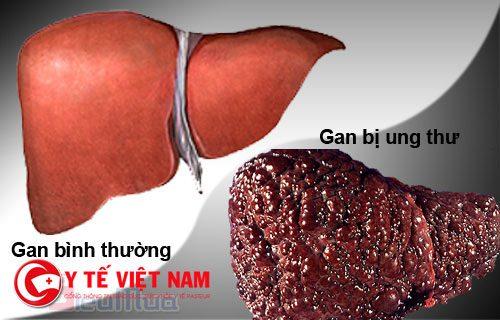 gan lành và gan bị ung thư