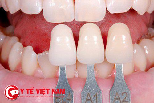 Mài răng bọc sứ thẩm mỹ mang đến hàm răng trắng sáng