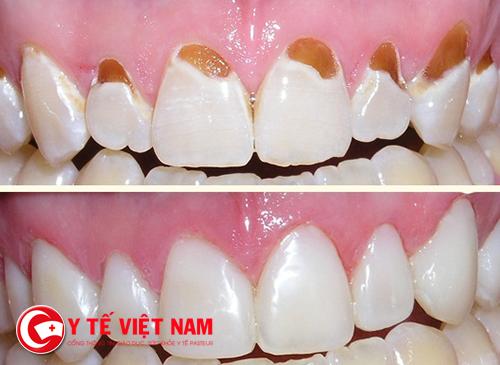Những khuyết điểm của răng trước và sau khi trám răng thẩm mỹ