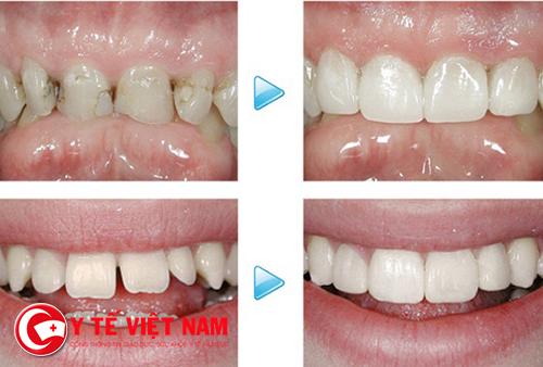 Hàm răng được phục hồi sau khi trám răng