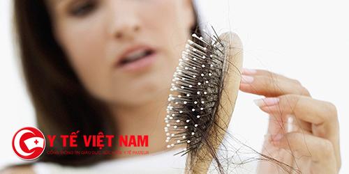 Rụng tóc - nguyên nhân và hướng điều trị như thế nào?