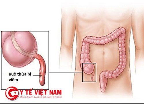 Dấu hiệu nhận biết bệnh viêm ruột thừa trên lâm sàng