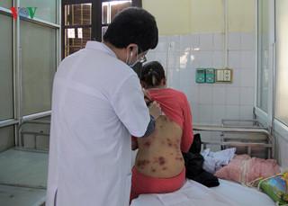Bệnh nhân nổi đầy mảng dị ứng sau khi uống thuốc Đông y.