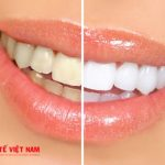 cách tẩy trắng răng cấp tốc