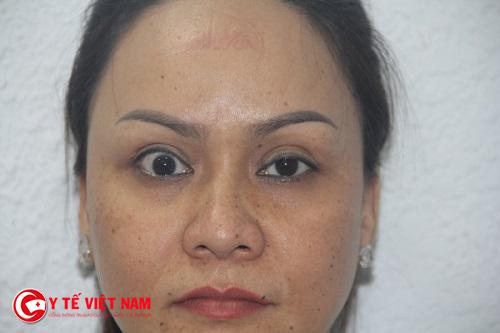 Cắt mí mắt phụ thuộc rất nhiều vào tay nghề bác sĩ