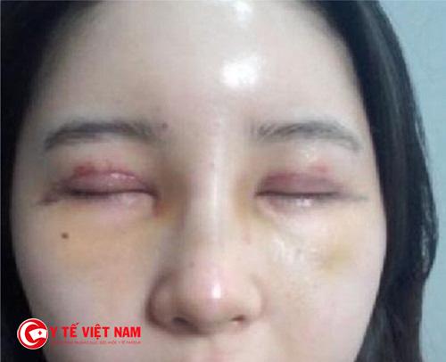 Lựa chọn địa chỉ cắt mí mắt không đảm bảo gây nên nhiều hậu quả nghiêm trọng