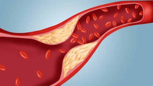 TOP 10 thực phẩm có công dụng giảm cholesterol hiệu quả