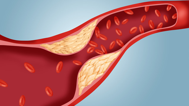 Cholesterol quá cao có thể gây bệnh lý về tim mạch