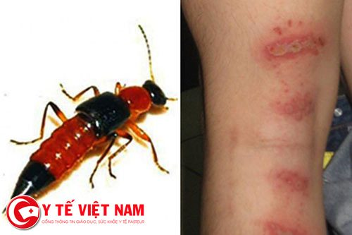 Điều dưỡng viên hướng dẫn cách xử trí khi tiếp xúc với kiến ba khoang