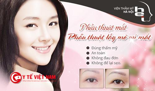 Bọng mỡ xuất hiện bạn có thể cải thiện bằng lấy mỡ mí mắt