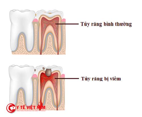 Tủy răng đóng vai trò quan trọng trong việc nuôi dưỡng răng