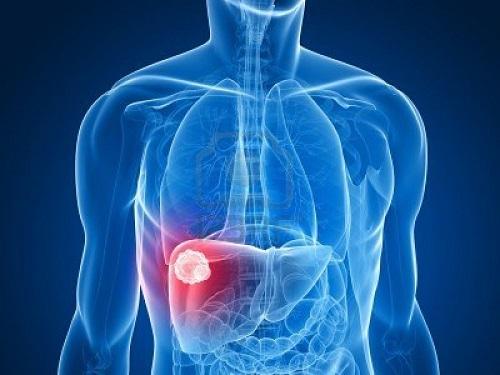 Viêm gan B gây nhiều hậu quả nguy hiểm cho người bệnh