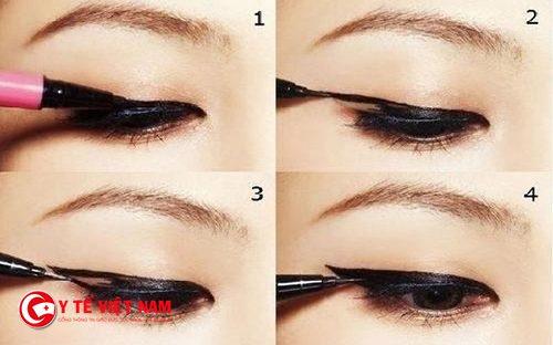 cách khắc phục mắt một mí