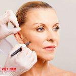 căng da mặt nội soi có ảnh hưởng gì không