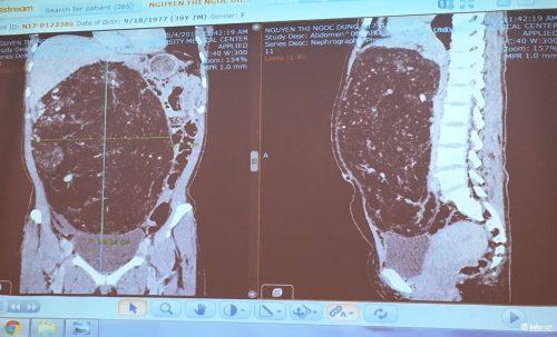 Khối u lớn chiếm gần hết ổ bụng của bệnh nhân