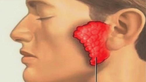 Dược sĩ Cao đẳng Dược cảnh báo triệu chứng nguy hiểm của bệnh quai bị