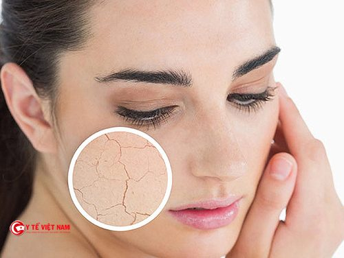 Làn da lão hóa chảy xệ tôi có nên căng da mặt không?