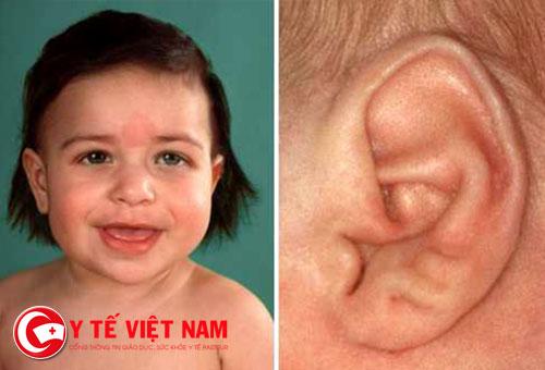 Bác sĩ hướng dẫn nhận biết tình trạng sức khỏe qua tai