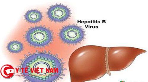Biểu hiện của bệnh viêm gan B