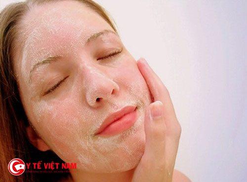 Tẩy tế bào chết cũng là cách trị mụn ẩn dưới da hiệu quả