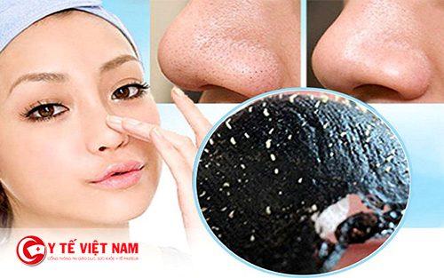 Lột mụn đầu đen cũng là sai lầm khi đẹp khiến da bị tổn thương
