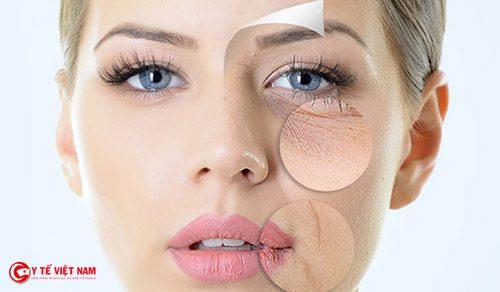 Chăm sóc da khô đúng cách để ngăn ngừa lão hóa da