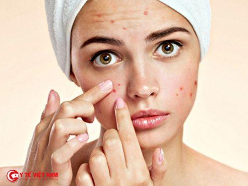 Làn da nổi mụn do chế độ ăn uống không hợp lí