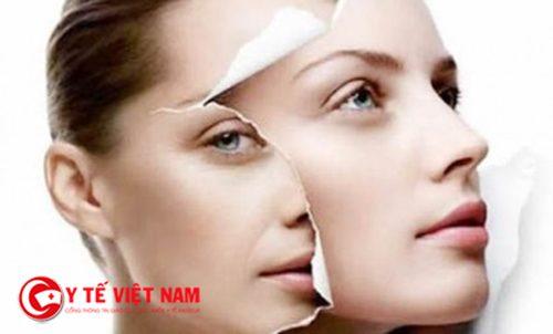 Trẻ hóa da mặt tự nhiên với sản phẩm có chứa acid tự nhiên