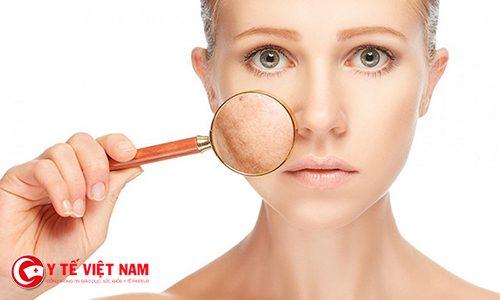 Nám da tàn nhang là một trong những nguyên nhân lão hóa da