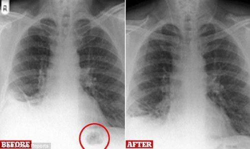 Phát hiện bác sĩ chẩn đoán nhầm đồ chơi là khối u ác tính trong phổi