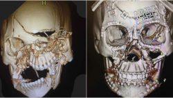 Ca phẫu thuật thành công với bộ xương mặt