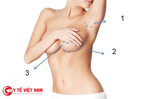 Nâng ngực thẩm mỹ và những điều cần biết