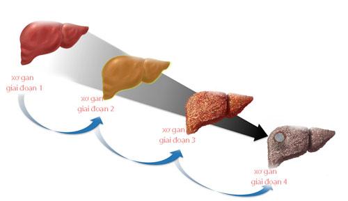 Mách bạn cách điều trị bệnh xơ gan bằng thuốc nam hiệu quả