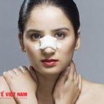 Phẫu thuật nâng mũi có ảnh hưởng gì không?