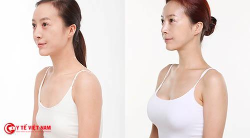 Nâng ngực có đau không được nhiều chị em quan tâm