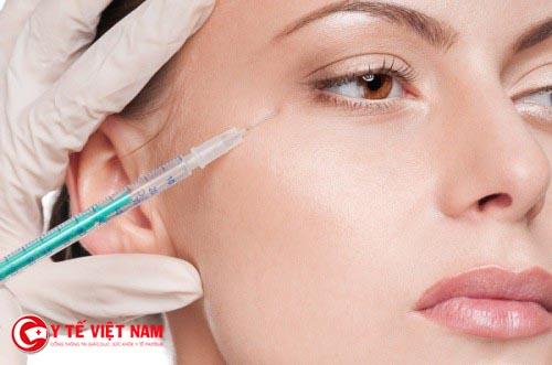 Có nên tiêm Botox để ngừa lão hóa da?