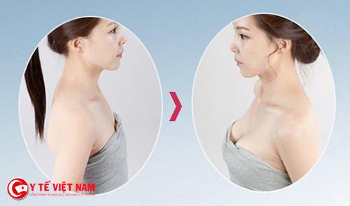 Nâng ngực nội soi được bao lâu?