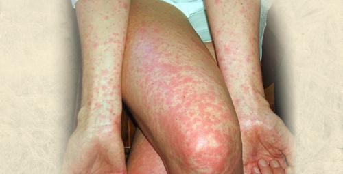 Các bệnh về da có thể để lại nhiều biến chứng bệnh nguy hiểm